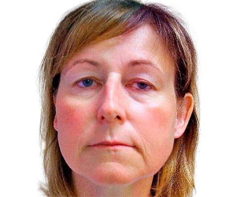 Endoskopický lifting čela – Endotine®