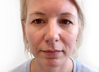 Operation der oberen Augenlider – Blefaroplastik