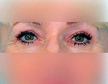 Operation der oberen und unteren Augenlider – Blefaroplastik