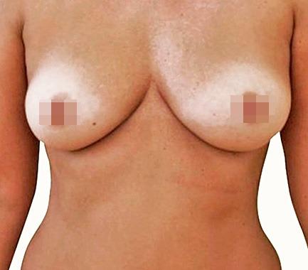 Breast lipotransfer