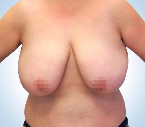 Brustverkleinerung und Brustmodellierung