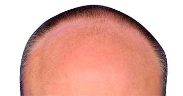 Transplantace vlasů SmartGraft