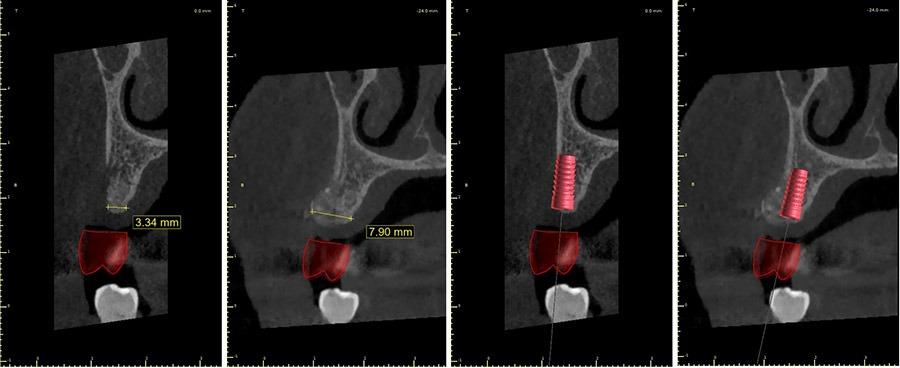 Aumento dell'osso mascellare